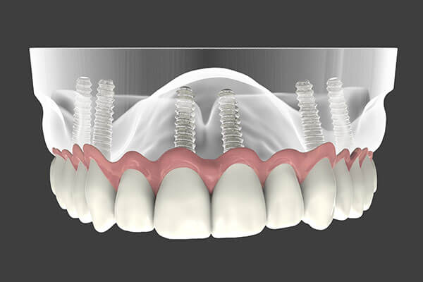 Graphic Showing Dental Implant Supported Dentures