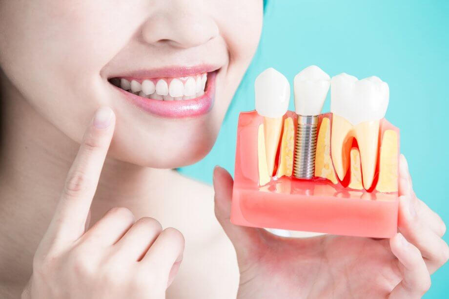 Bella Dental Implants - Myths vs. Facts