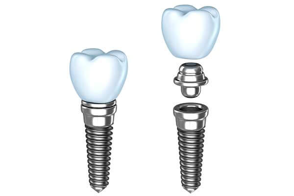 Graphic Showing Single Tooth Dental Implants