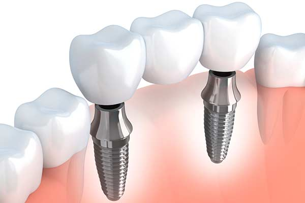 Graphic Showing Dental Implant Supported Bridge