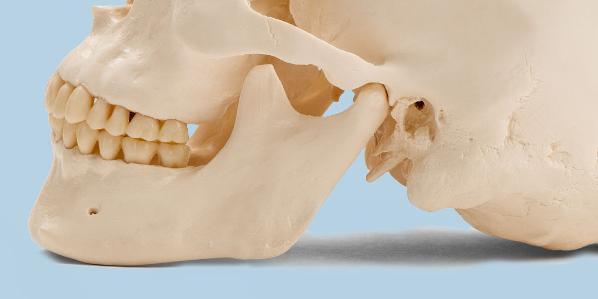 Side View Model of Skull Showing TMJ Disorder