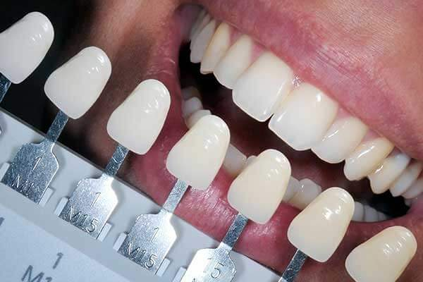 Tooth Shade Guide For Composite Fillings
